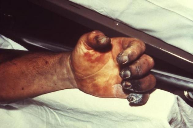 Житель Индонезии отпилил себе руку, не сумев оплатить счет за лечение