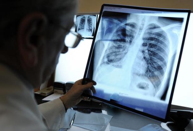 В Рязани отрицают угрозу заражения детей туберкулезом