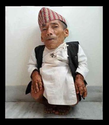 Самый маленький человек в мире скончался в 76 лет от пневмонии
