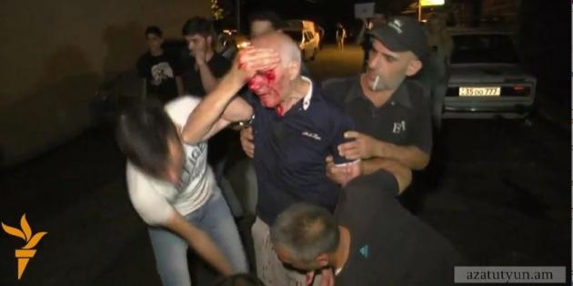 45 человек госпитализированы после столкновений близ захваченного полка ППС в Ереване