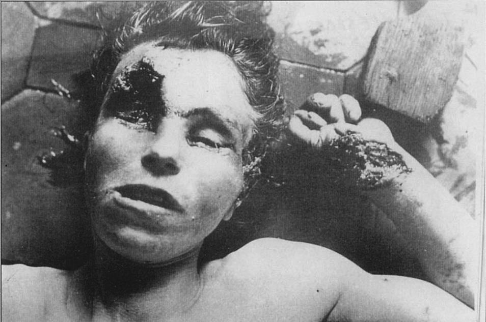 Одна из жертв «Волынской резни». 1943 год