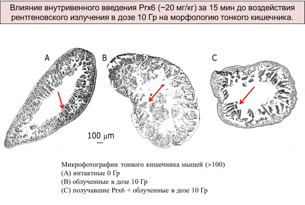 Рис. 6. Структура тонкого кишечника мыши после облучения животного рентгеновским излучением в дозе 10 Гр (летальная доза)