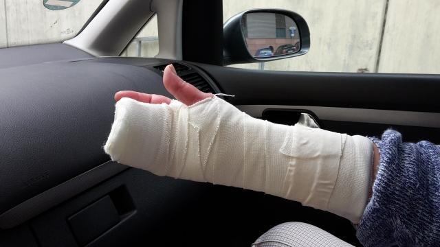 Поврежденная рука 74-летней уроженки Одессы