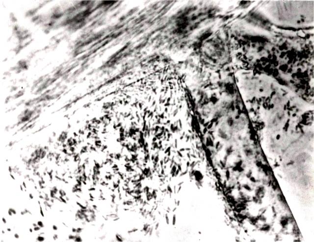 Микрофотография, показывающая симбиоз растения и микроорганизмов в ризосфере. Колонизация микроорганизмами поверхности корня на выделениях муцигелях растения (из архива ВНИИ Сельхозмикробиологии)