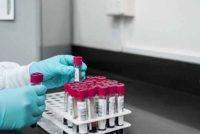 В Киргизии растет заболеваемость вирусным гепатитом