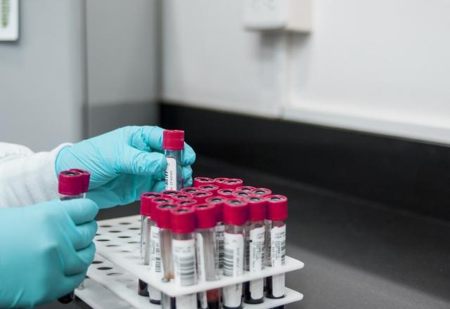 Власти индийского штата Раджастхан обеспокоены новой вспышкой вируса Зика