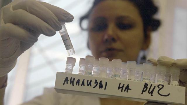 В России испытывают новый препарат против ВИЧ
