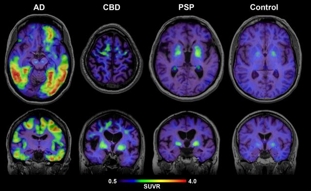 Результаты Amyloid PET (слева направо): пациент с болезнью Альцгеймера (AD), пациент с кортикобазальной дегенерацией (CBD), пациент с прогрессивным супрануклеарным параличом (PSP) и когнитивно здоровый пожилой человек (Control)