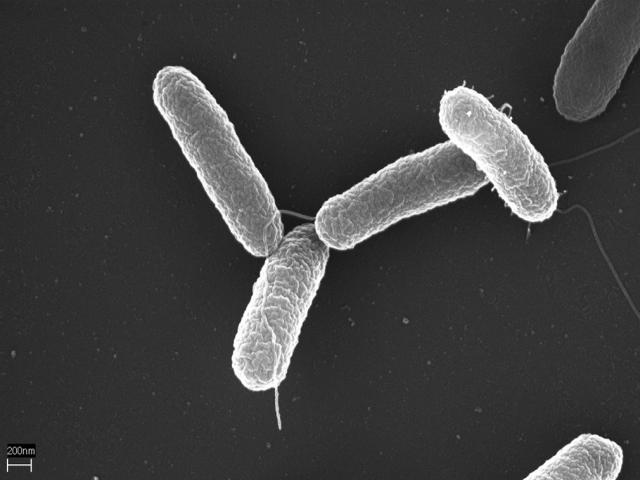 В США зафиксирована вспышка сальмонеллёза — Роспотребнадзор