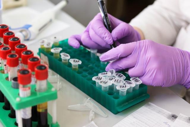 43 млн египтян прошли проверку в рамках кампании борьбы с гепатитом С