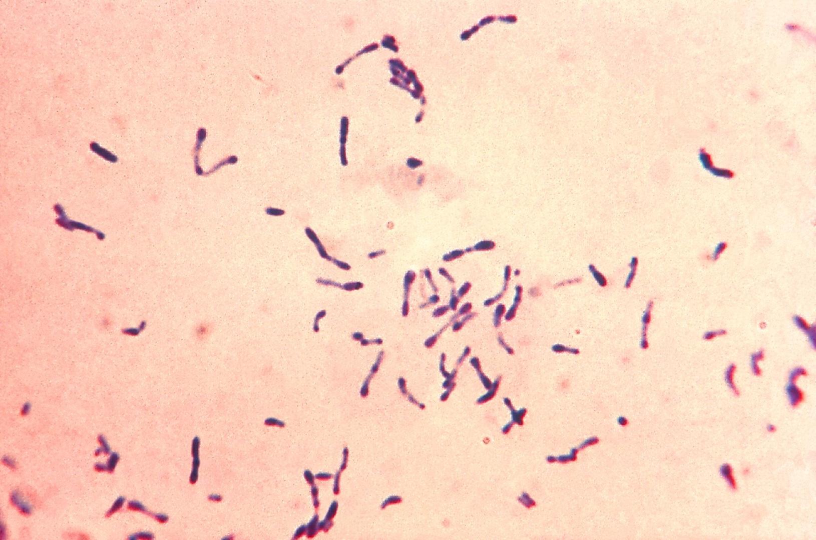 сведения дифтероиды микробиология фото пишет новые песни