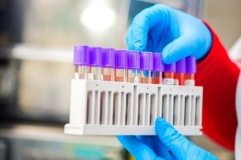 В Югре за сутки выявлено 103 заражения коронавирусом
